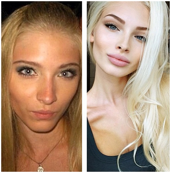 instagram girls before plastic surgery   irina tee