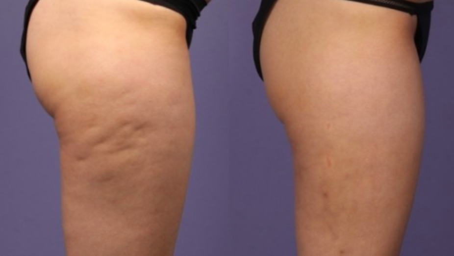 What Gets Rid Of Cellulite Naturally